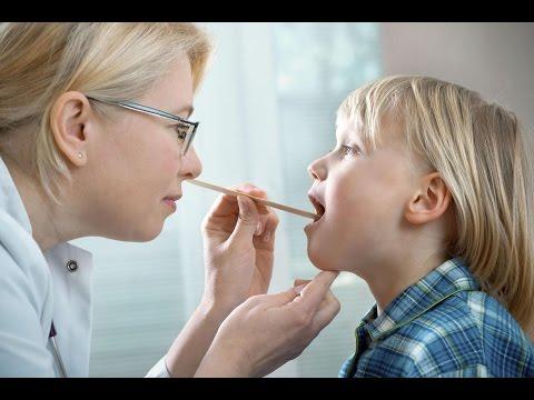 Часто ребенок болеет ангиной причины