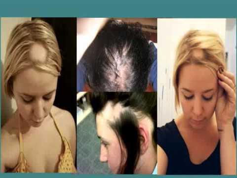 La receta de la caída de los cabello el pimiento