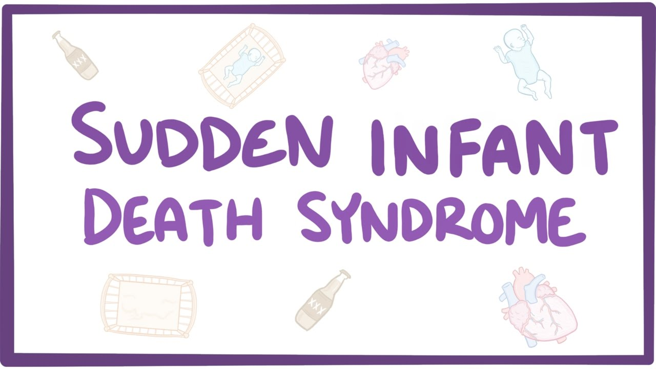 sudden infant death syndrome Sudden infant death syndrome (sids) is the unexplained death of a child under 1 year of age read about potential causes, prevention information and how to minimize risk factors.