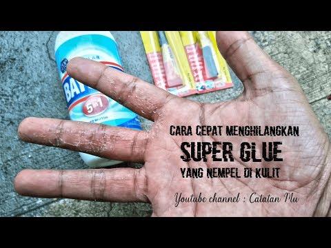 Cara membersihkan lem G atau Super glue sejenis yang terkena kulit