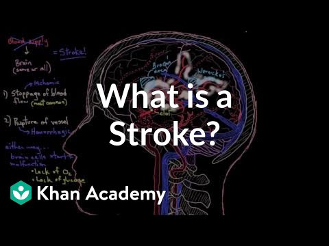 what-is-a-stroke?-|-circulatory-system-and-disease-|-nclex-rn-|-khan-academy
