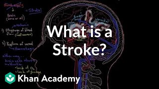 Video What is a stroke? | Circulatory System and Disease | NCLEX-RN | Khan Academy download MP3, 3GP, MP4, WEBM, AVI, FLV November 2017