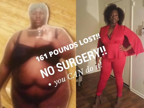 I Lost Over 150 Pounds No Surgery Before And After Pictures Weight
