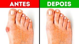 Consertar pés como os