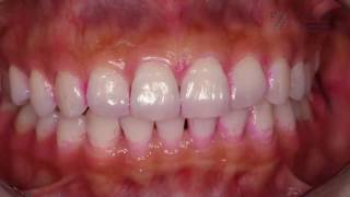 Why is dental hygiene and professional teeth cleaning so important?