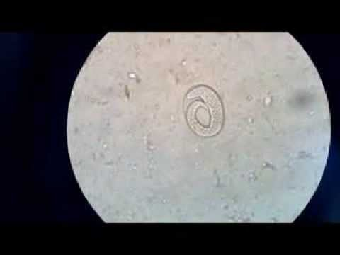Hookworms in Small Animals - Digestive System - Veterinary ...