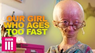 Our Girl Who Ages Too Fast: Adalia Rose | Living Differently streaming