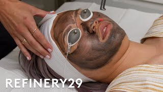 I Tried Charcoal Laser Facial For The First Time | Beauty With Mi | Refinery29
