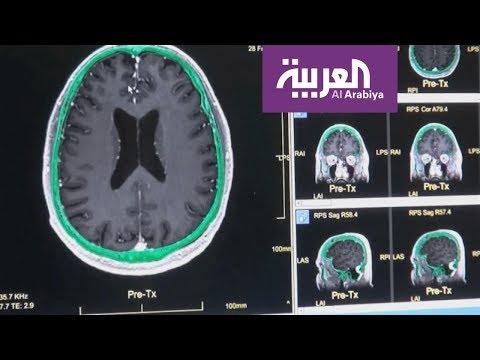 كيف يؤثر الصداع النصفي على القلب والعقل؟  - 21:53-2018 / 11 / 15