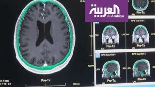 كيف يؤثر الصداع النصفي على القلب والعقل؟