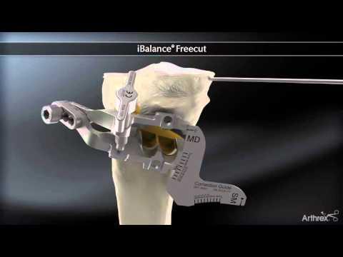 Chirurgie de l'Arthrose Osteotomie tibiale de valgisation Dr Philippe Loriaut