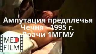 Ампутация предплечья. Чечня - 1995. Врачи ММА © Amputation of the forearm