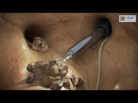Мочекаменная болезнь  удаление камней и лечение почечной колики 4
