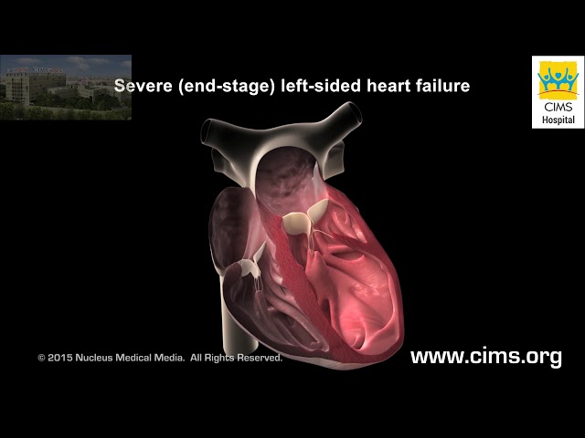 Left Ventricular Assist Device LVAD