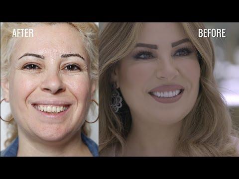 بالرغم من عملها في مجال التجميل إلا أنها احتاجت مساعدة جويل وفريق كلينكا جويل الطبي