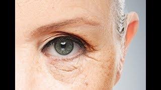 تعرف علي أفضل طرق علاج تجاعيد العين مع الدكتورة أميرة النادي