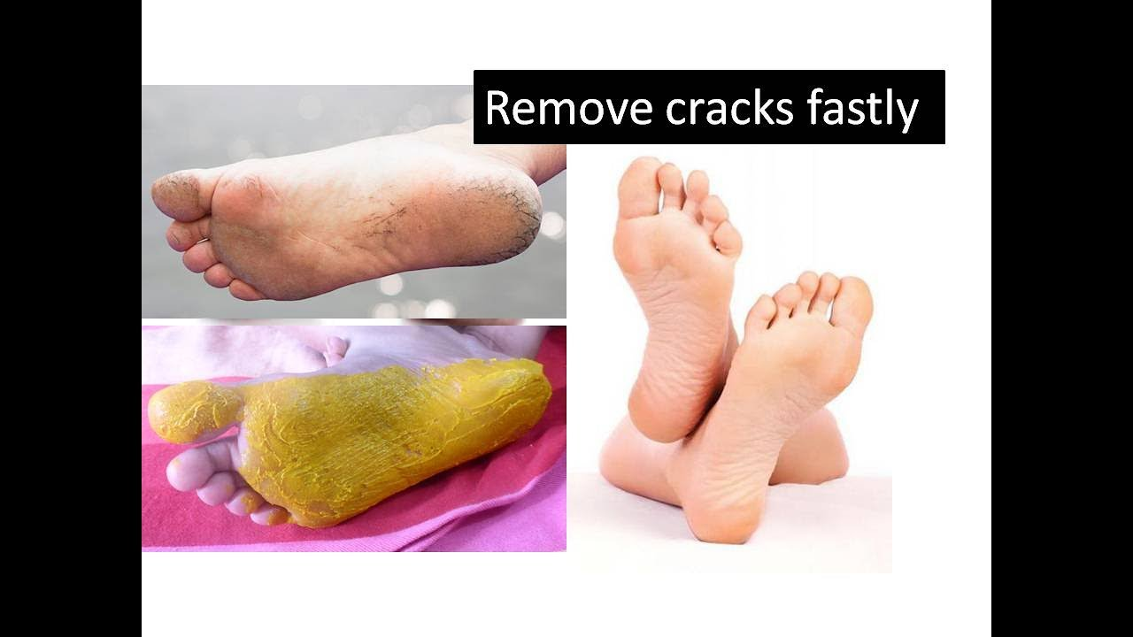 Tips to remove cracks in feet | Starnaturalbeauties