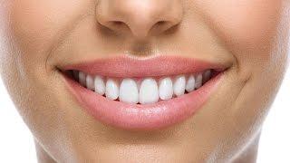 Мои отзывы об имплантации зубов.