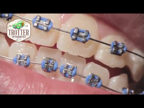 Watch How Braces Are Put On - Orthodontic Treatment Using Fixed Brackets  Redondo Beach Orthodontist