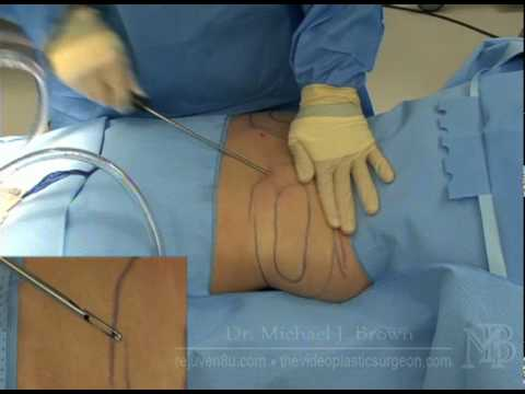 Liposuction of the