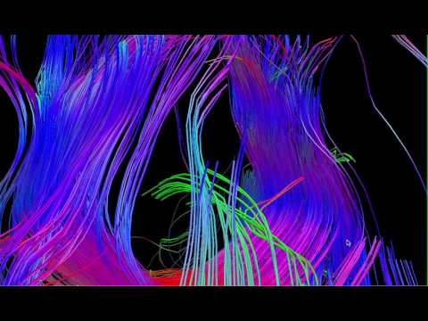 Diffusion Tensor Tractography DTI MRI 5 - William Edward Hahn