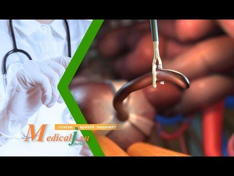 Удаление аппендицита с помощью лапароскопии