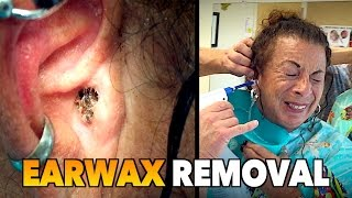 massive earwax removal   dr paul feat maiya my wife