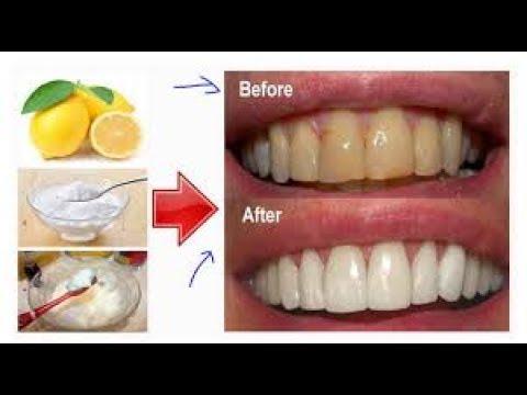 Luar Biasa 4 Cara Memutihkan Gigi Dengan Garam Secara Tradisional