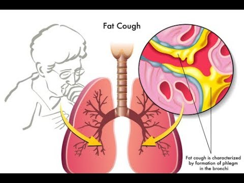 7 Ways To Get Rid Of Mucus In Your Lungs Mucus Home Remedy Youtube