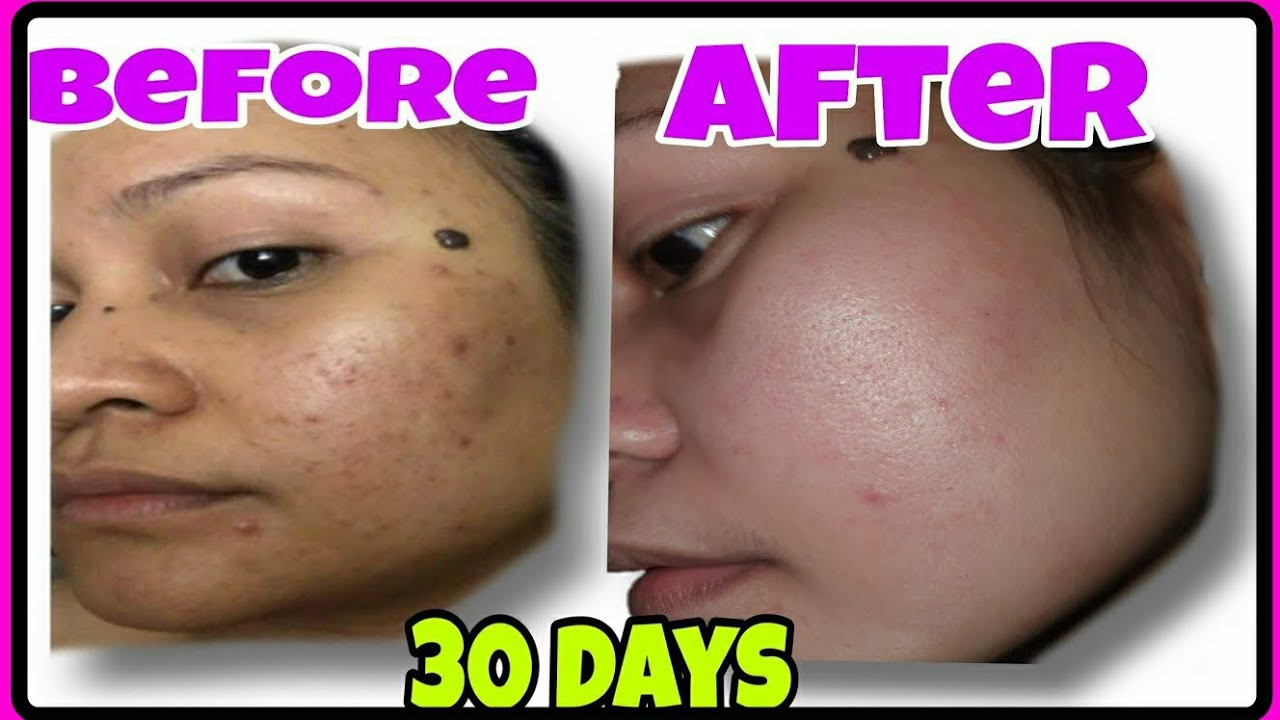 Tigidig No more in just 1 Month! BRILLIANT SKIN ESSENTIALS | Tips, Steps and Review