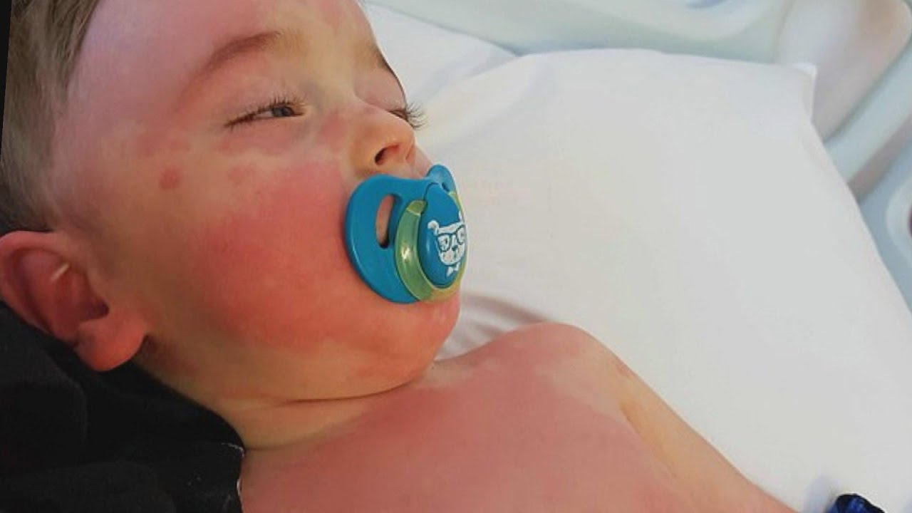 New COVID-19 Symptom Can Cause Inflammation in Children - YouTube