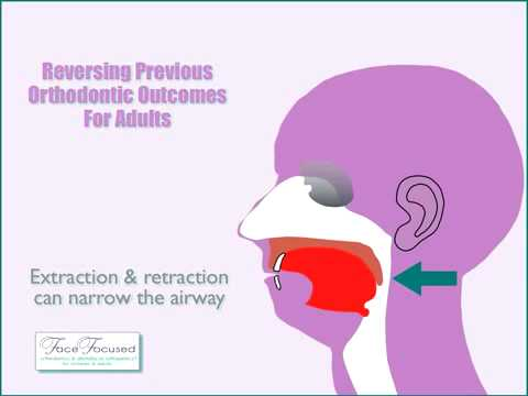 Can extractions, headgear, orthodontic appliances and/or braces impact your airway & breathing?