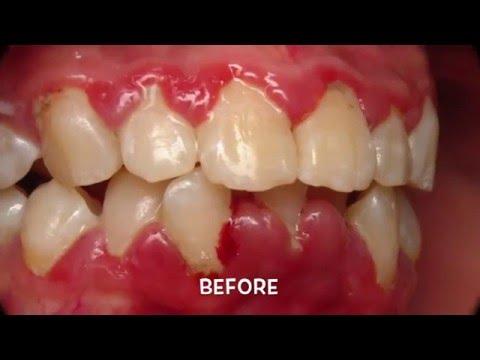 Treatment Of Periodontal (Gum) Disease.