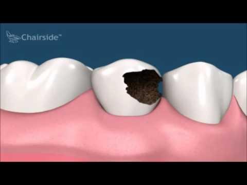 Зуб раскрошился и болит