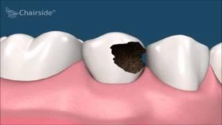 Стоматология. Что делать если сильно разрушен зуб. Лечение. Имплантология.(, 2016-12-25T22:57:20.000Z)
