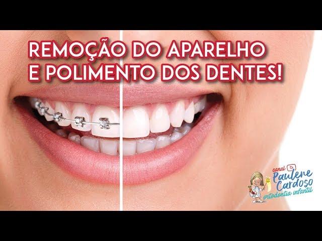 Dra Paulene Cardoso - Retirada do aparelho fixo e polimento