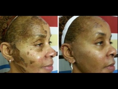 How To Apply Chemical Peel At Home Face Body Youtube