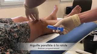 Ponction-infiltration de genou en soins primaires