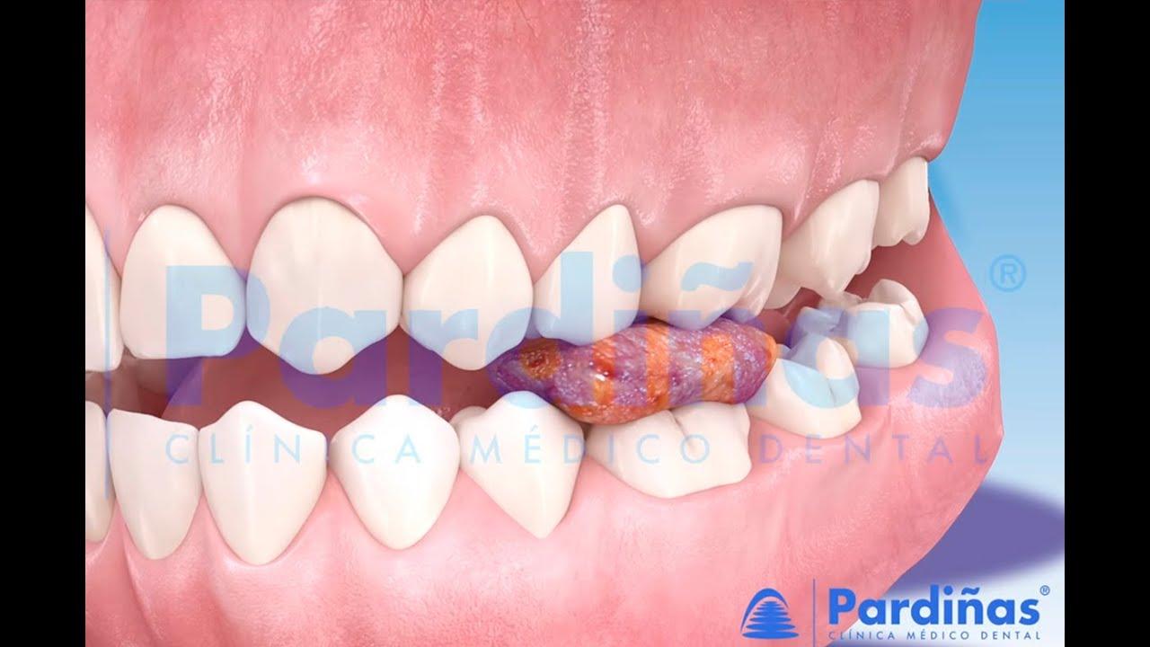 歯の充填の問題 ©