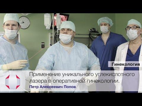 Лазерные технологии в гинекологии. Клиники СМТ. Врач - Попов