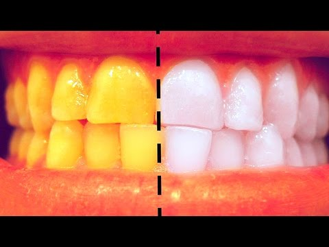 Thumbnail: How To Whiten Teeth at Home in 3 Minutes - SIMPLE Life hack