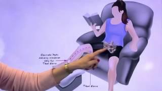 Мышцы тазового дна - тренировка интеллектуальным тренажером