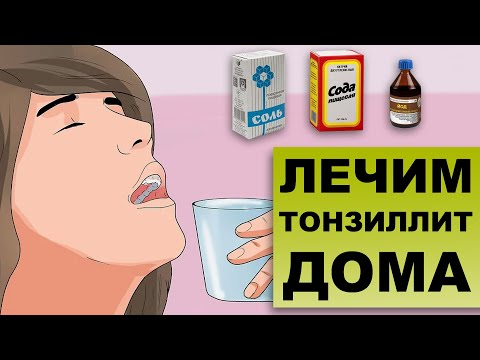 Как лечить тонзиллит в домашних условиях у ребенка