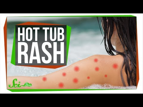 Can Hot Tubs Make You Sick?