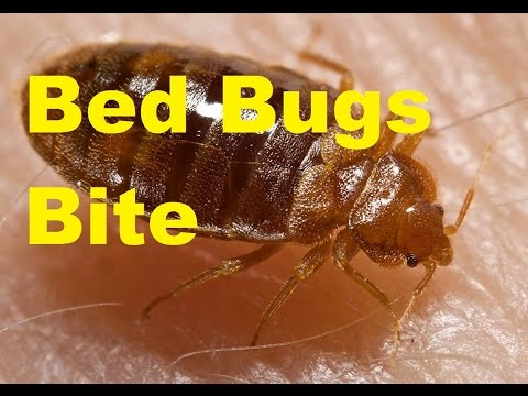 top cool facts about bed bugs how to get rid of bed bugs thecoolfactshow ep 9 youtube. Black Bedroom Furniture Sets. Home Design Ideas