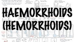Haemorrhoids (Hemorrhoids) - Overview (pathophysiology, investigations and treatment)