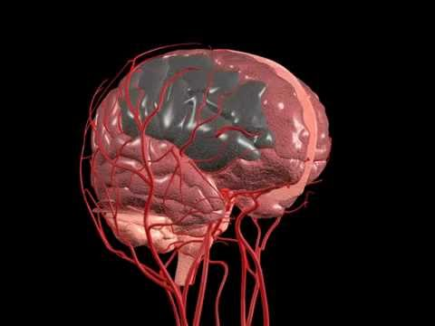 Image Gallery ischemic stroke animation - 15.3KB