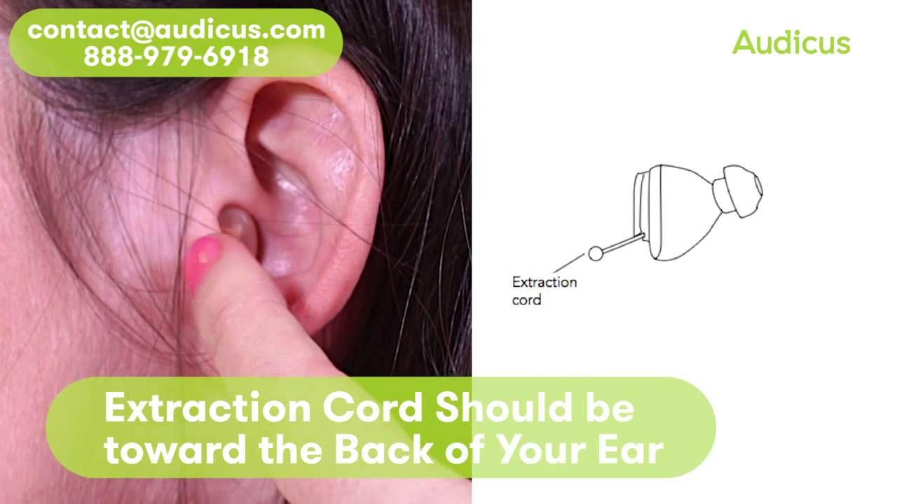 Audicus hearing aid reviews