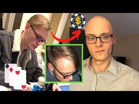 BALDING AT 20 - Going Bald And Shaving My Head for good - LIVE 11 from YouTube · Duration:  10 minutes 25 seconds