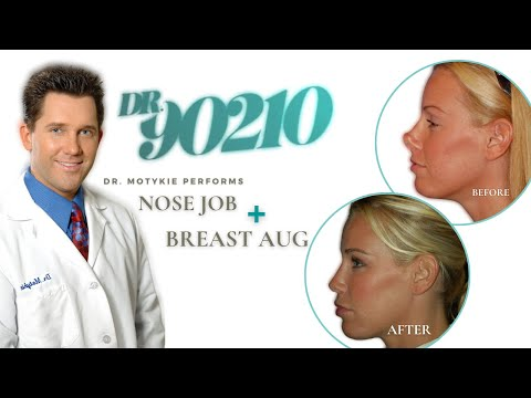 Dr. 90210 Gary Motykie Preforms a Breast and Nose Revision on Melissa